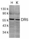 CD262 Antibody gallery image 1