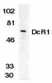 CD263 Antibody gallery image 1