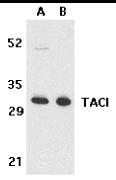 CD267 Antibody gallery image 1
