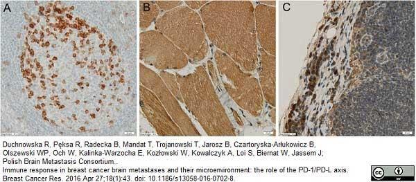 CD274 Antibody gallery image 1