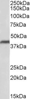 CD274 Antibody gallery image 2