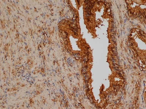 CD276 Antibody | AbD11434 gallery image 1