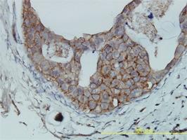 CD321 Antibody | 2E3-1C8 gallery image 1
