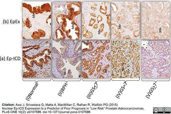 CD326 Antibody | MOC-31 gallery image 1