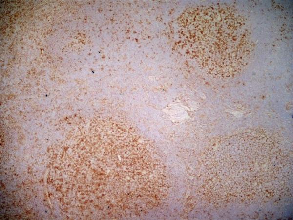 CD40 Antibody | LOB7/6 gallery image 2