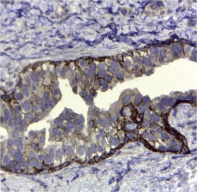 CD44v5 Antibody   VFF-8 gallery image 2