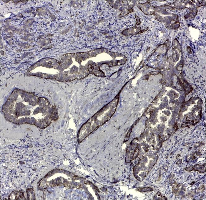 CD44v5 Antibody   VFF-8 gallery image 1
