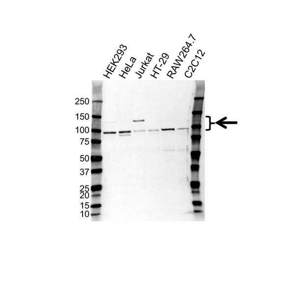 CD61 Antibody (PrecisionAb<sup>TM</sup> Antibody) gallery image 1