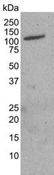 CD71 Antibody | 13E4 gallery image 1