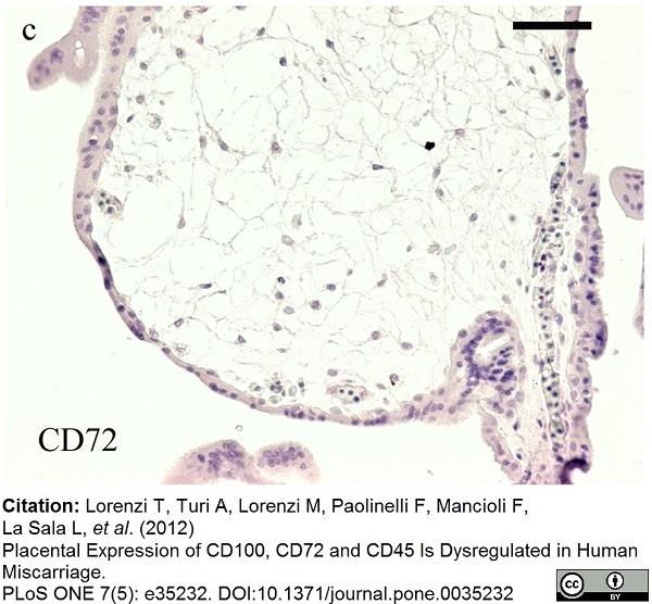 CD72 Antibody | Bu40 gallery image 3