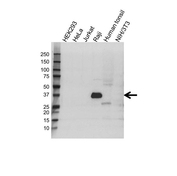 CD74 Antibody (PrecisionAb<sup>TM</sup> Antibody) | OTI1H3 gallery image 1