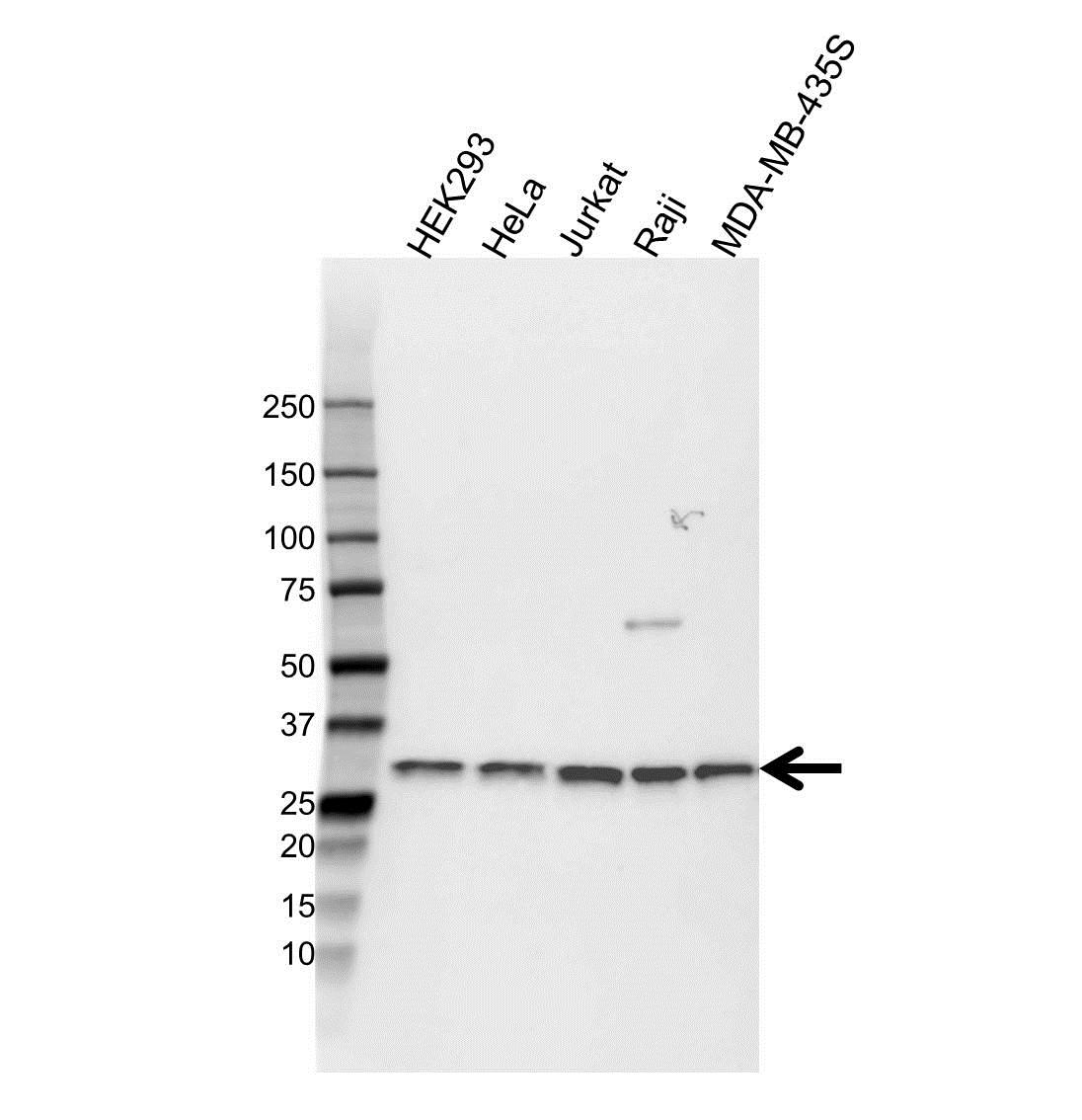 CD8 Beta Antibody (PrecisionAb<sup>TM</sup> Antibody) gallery image 1