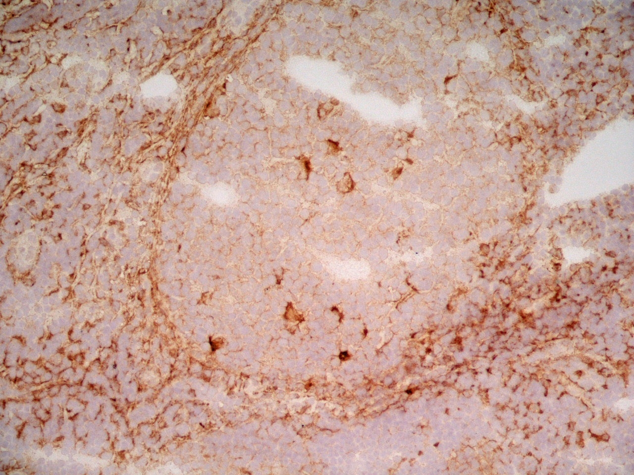 CD91 Antibody   A2Mr alpha-2 gallery image 3