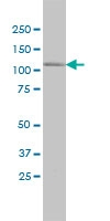 CDC42BPA Antibody | 1G7 gallery image 1