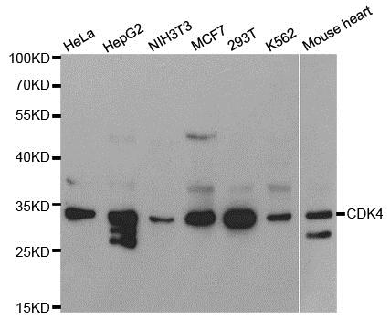 CDK4 Antibody gallery image 1