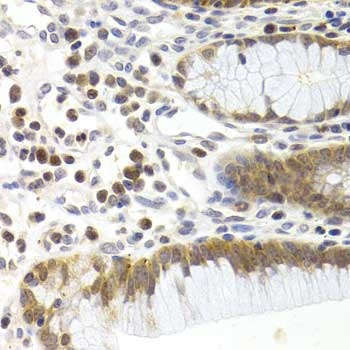 CDK6 Antibody gallery image 3