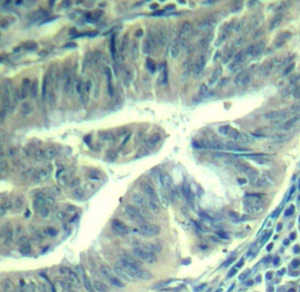 Cdk6 (pTyr24) Antibody gallery image 2