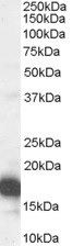 CDKN2A Antibody gallery image 1