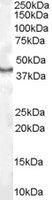 CDX2 Antibody gallery image 1