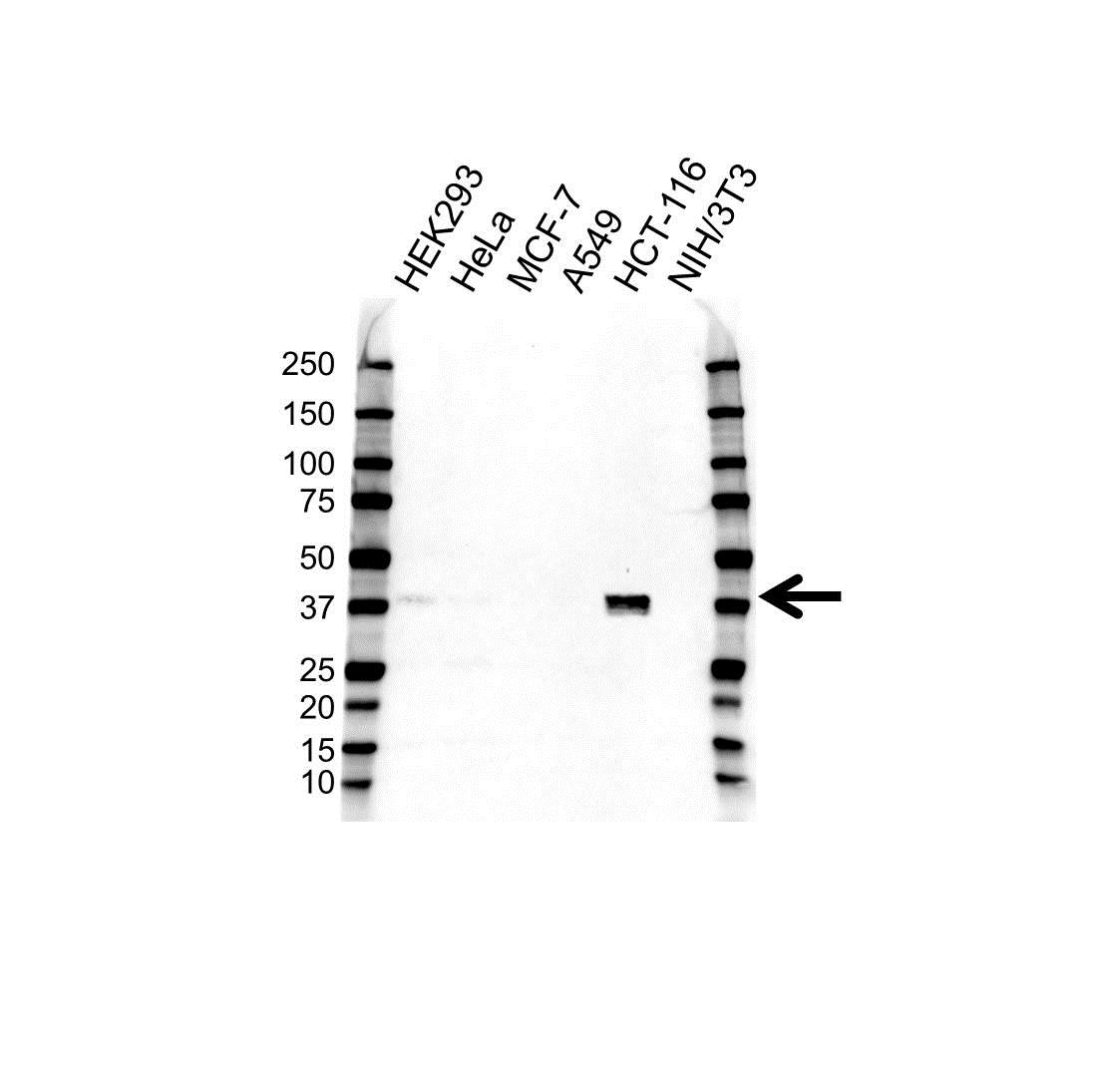 CDX2 Antibody (PrecisionAb<sup>TM</sup> Antibody) gallery image 1