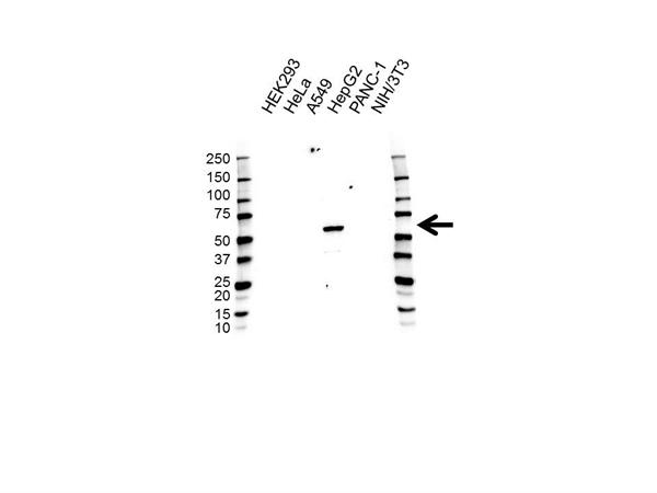 CES1 Antibody (PrecisionAb<sup>TM</sup> Antibody) gallery image 1