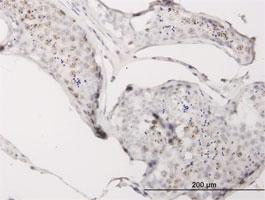 CGGBP1 Antibody | 1D11 gallery image 1