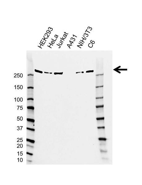 CHD4 Antibody (PrecisionAb<sup>TM</sup> Antibody) | AB01/2B7 gallery image 1
