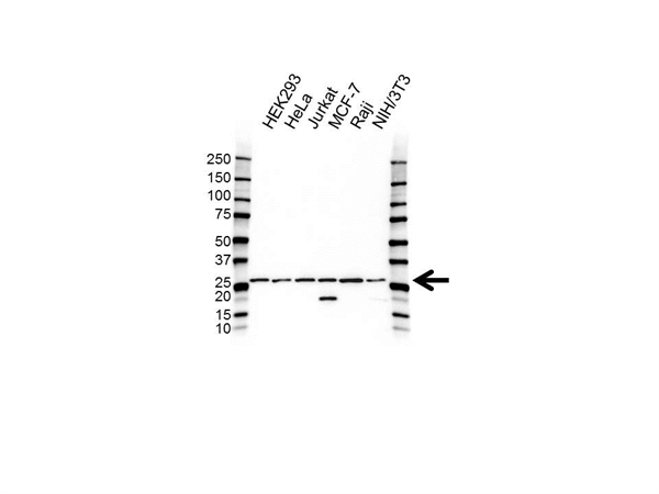 CHMP2A Antibody (PrecisionAb<sup>TM</sup> Antibody) gallery image 1