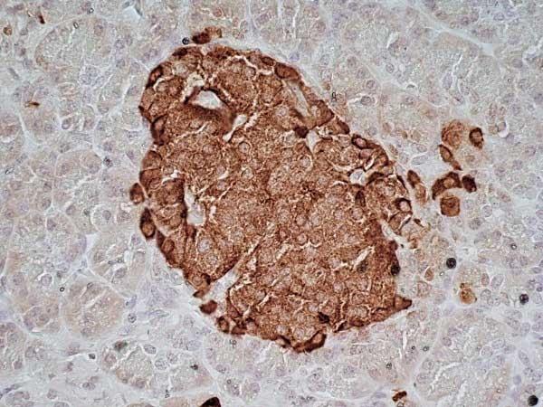 Chromogranin A Antibody | LK2H10 gallery image 4