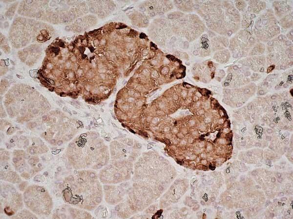 Chromogranin A Antibody   PHE5 gallery image 5