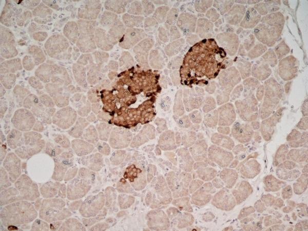 Chromogranin A Antibody | PHE5 gallery image 3