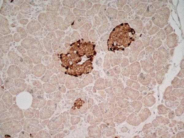 Chromogranin A Antibody   PHE5 gallery image 3