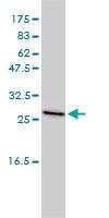 Clathrin Antibody | 4B12-1E3 gallery image 1