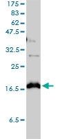 CLDN1 Antibody | 1C5-D9 gallery image 1