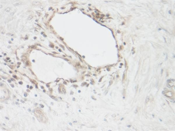 CNTF Antibody gallery image 1