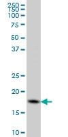 Cofilin 1 Antibody | 1A1 gallery image 3