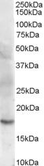 Cofilin 2 Antibody gallery image 1