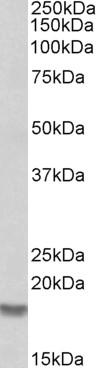 Cofilin 2 Antibody gallery image 2