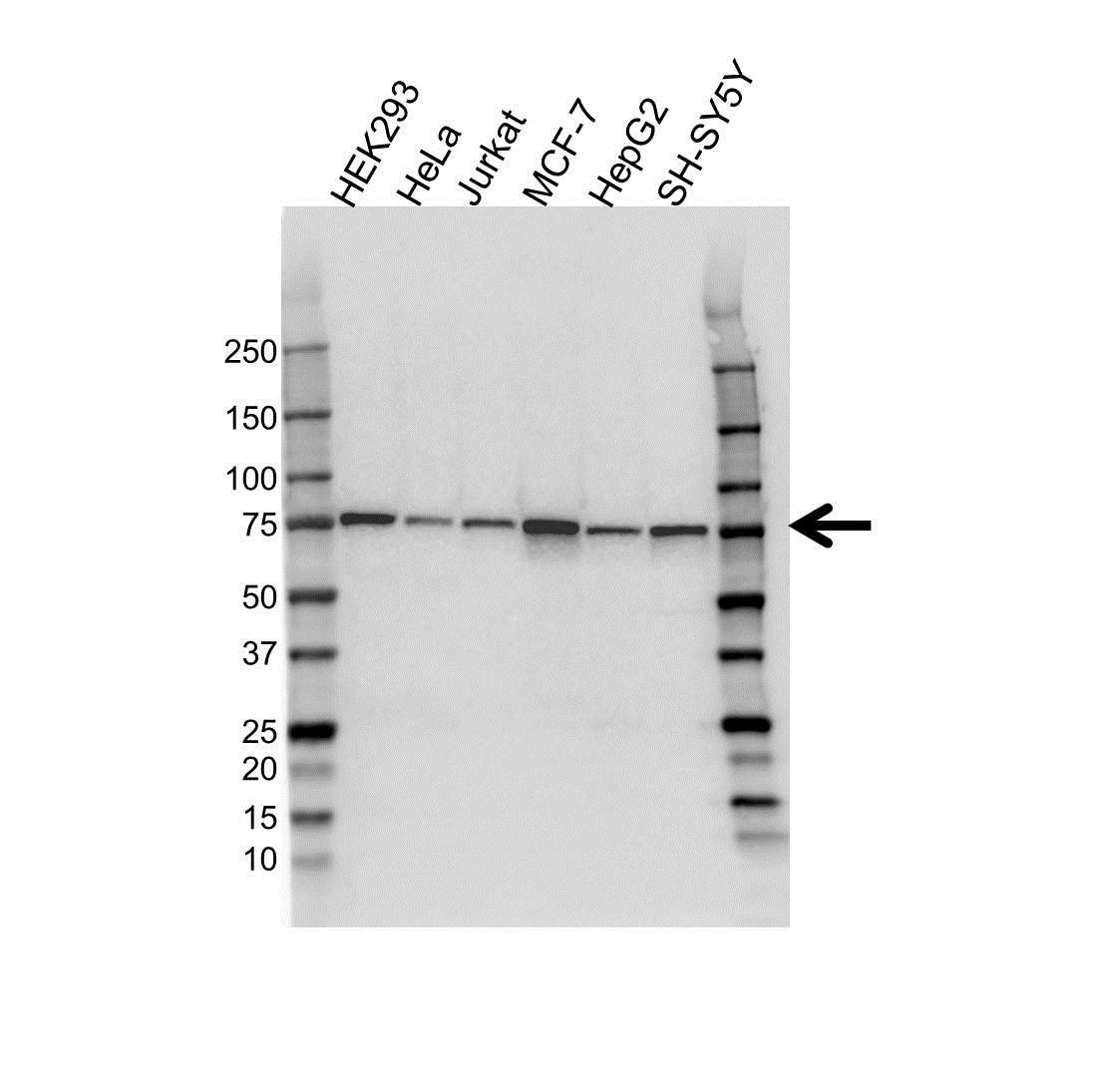 Coilin Antibody (PrecisionAb<sup>TM</sup> Antibody) gallery image 1