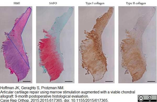 Collagen I Antibody gallery image 2