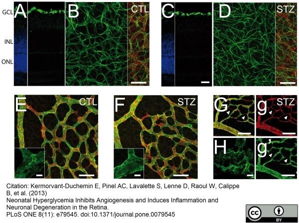 Collagen IV Antibody gallery image 3