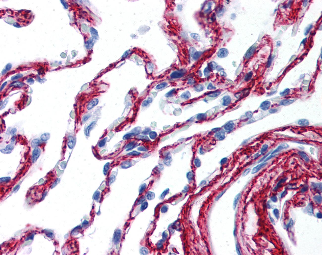 Collagen VI Antibody gallery image 1