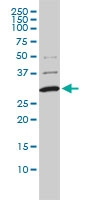 COMT Antibody | 1G4-1A1 gallery image 1
