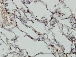 Coro1A Antibody | 4G10 gallery image 1