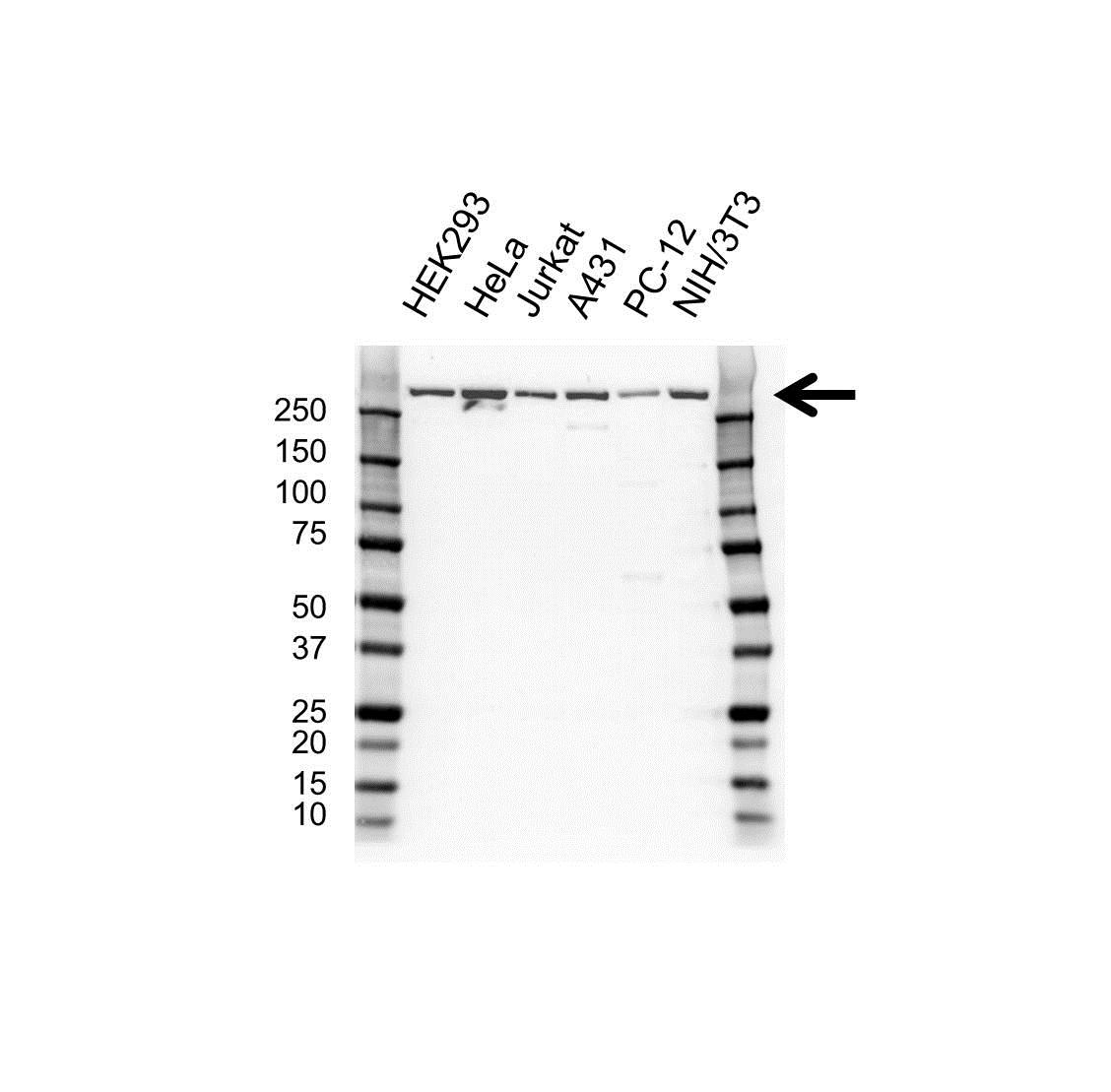 CREB Binding Protein Antibody (PrecisionAb<sup>TM</sup> Antibody) gallery image 1
