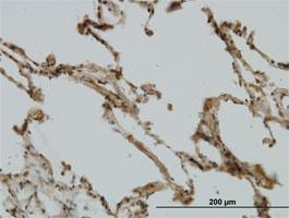 CRIM1 Antibody | 6E4 gallery image 1