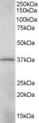 CRKL Antibody gallery image 1