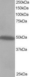 CSK Antibody gallery image 2