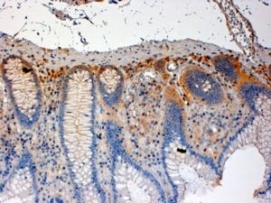 CSK Antibody gallery image 1