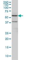 CTNS Antibody | 5G6 gallery image 1
